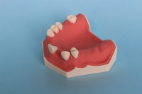 Model of the jaw consisting of external rigid shell and inner cancellous material 10-5071